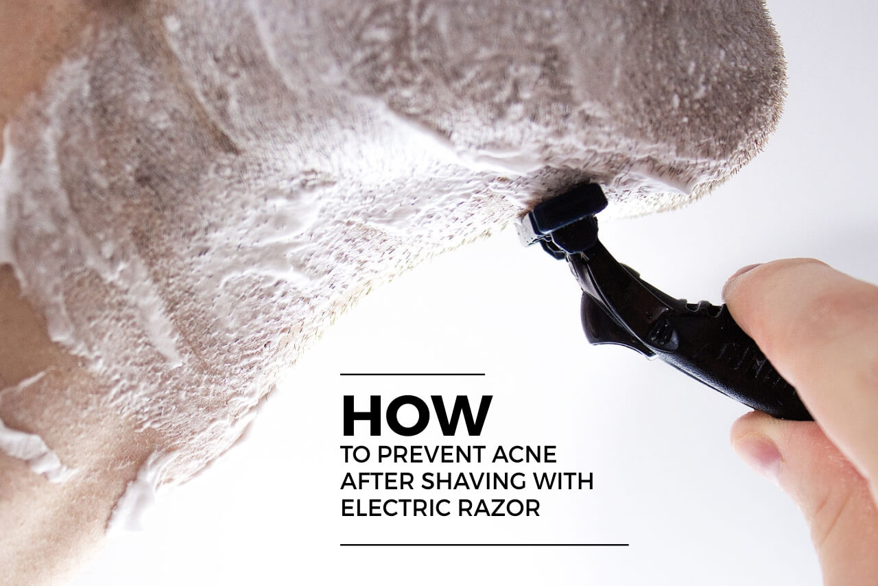 how to prevent acne after shaving with electric razor (1)